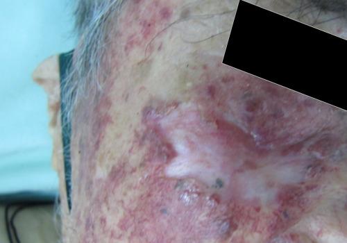 Carcinoma-basocelular-extenso